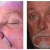 Before and After - Skin Cancer Patient 1 - Front View
