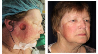Before and After - Skin Cancer Patient 11 - Front View