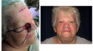 Before and After - Skin Cancer Patient 12 - Front View