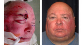 Before and After - Skin Cancer Patient 17 - Front View