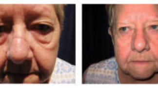 Before and After - Skin Cancer Patient 18 - Post-Op
