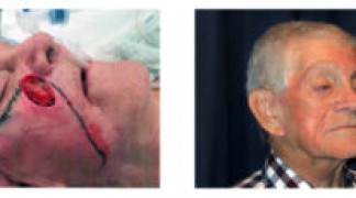 Before and After - Skin Cancer Patient 19 - Side View