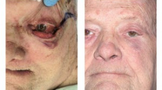 Before and After - Skin Cancer Patient 2 - Front View
