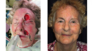 Before and After - Skin Cancer Patient 23 - Front View