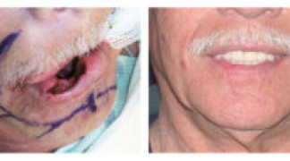 Before and After - Skin Cancer Patient 4 - Front View