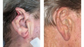 Before and After - Skin Cancer Patient 7 - Side View