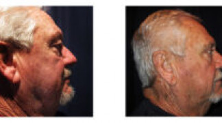 Before and After - Blepharoplasty 10 - Side View