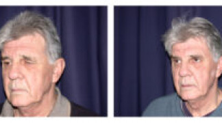 Before and After - Blepharoplasty 4 - Profile