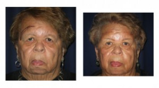 Before and After - Blepharoplasty 6 - Front View