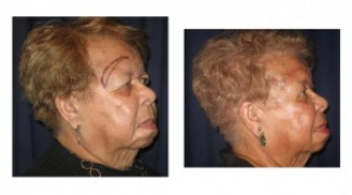 Before and After - Blepharoplasty 6 - Side View
