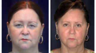 Before and After - Blepharoplasty 7 - Front View