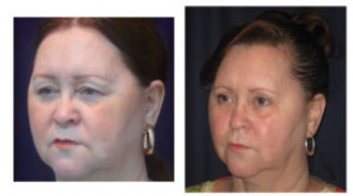 Before and After - Blepharoplasty 7 - Profile