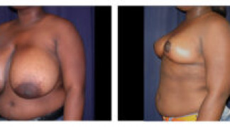 Before and After - Breast Reduction 2 - Side View