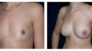 Before and After - Breast Augmentation 8 - Profile