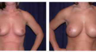 Before and After - Breast Augmentation 9 - Front View