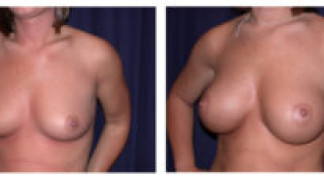 Before and After - Breast Augmentation 9 - Profile