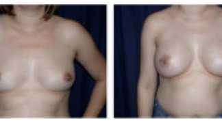 Before and After - Breast Augmentation 10 - Front View
