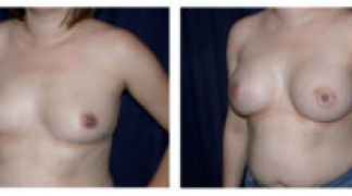 Before and After - Breast Augmentation 10 - Profile