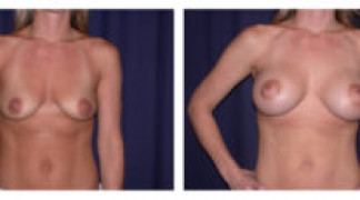 Before and After - Breast Augmentation with Mastopexy 1 - Front View