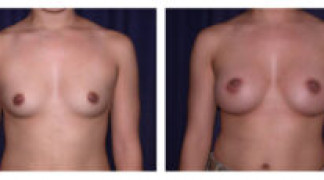 Before and After - Breast Augmentation 11 - Front View