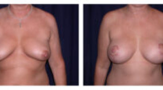 Before and After - Breast Augmentation with Mastopexy 4 - Front View
