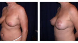 Before and After - Breast Augmentation with Mastopexy 4 - Profile