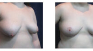 Before and After - Breast Augmentation with Mastopexy 6 - Front View