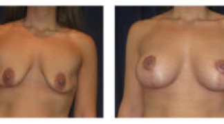 Before and After - Breast Augmentation with Mastopexy 7 - Front View