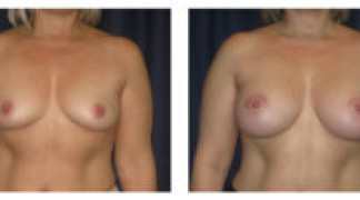 Before and After - Breast Augmentation 12 - Front View