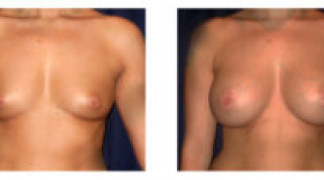 Before and After - Breast Augmentation 13 - Front View