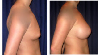 Before and After - Breast Augmentation 13 - Profile