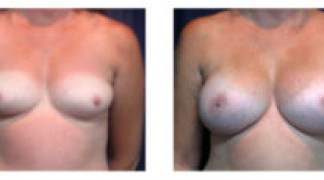Before and After - Breast Augmentation 14 - Front View