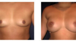 Before and After - Breast Augmentation 15 - Front View