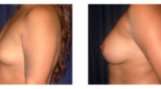 Before and After - Breast Augmentation 15 - Profile