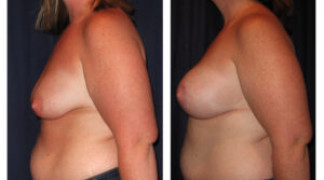 Before and After - Breast Augmentation with Mastopexy 8 - Side View