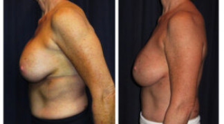 Before and After - Breast Augmentation 16 - Profile