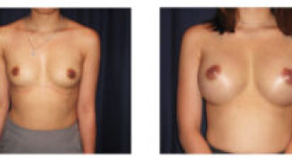Before and After - Breast Augmentation 17 - Front View