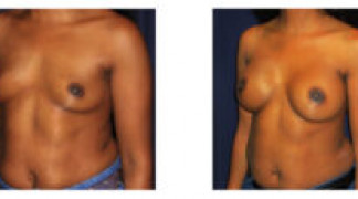 Before and After - Breast Augmentation 18 - Profile