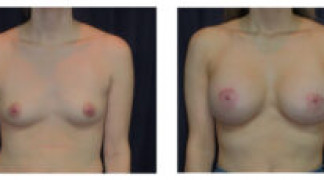 Before and After - Breast Augmentation 19 - Front View
