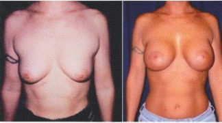Before and After - Breast Augmentation with Mastopexy 2 - Front View