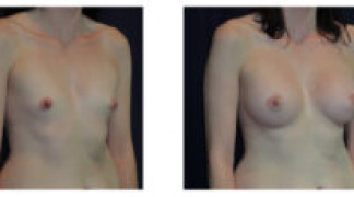 Before and After - Breast Augmentation 20 - Profile