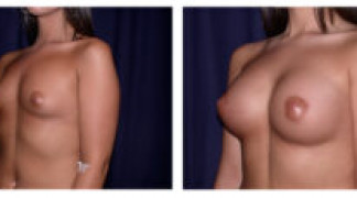 Before and After - Breast Augmentation 4 - Profile