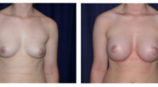 Before and After - Breast Augmentation 5 - Front View