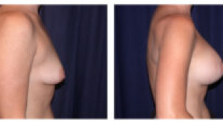 Before and After - Breast Augmentation with Mastopexy 5 - Side View