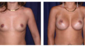 Before and After - Breast Augmentation 6 - Front View