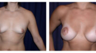 Before and After - Breast Augmentation 7 - Front View