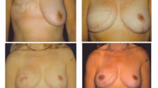 Breast Reconstruction 2 - Complete Reconstruction
