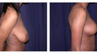 Before and After - Breast Reduction 9 - Side View