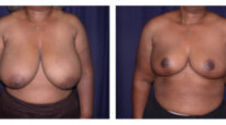 Before and After - Breast Reduction 10 - Front View