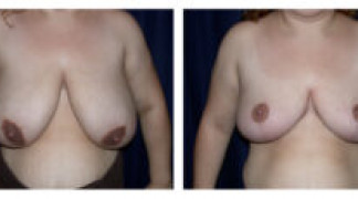 Before and After - Breast Reduction 12 - Front View